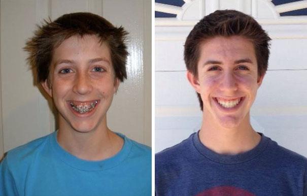 foto antes y después  brackets