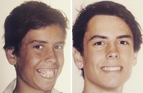 foto antes y después  brackets 10