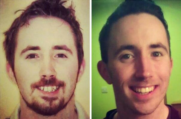 foto antes y después  brackets 11