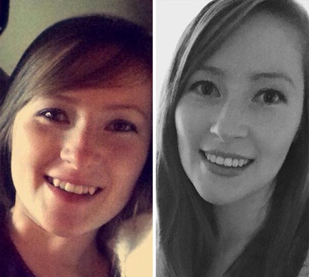 foto antes y después  brackets 12