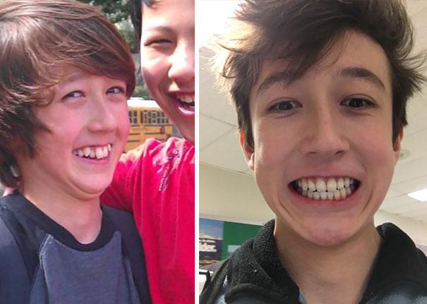 foto antes y después  brackets 13