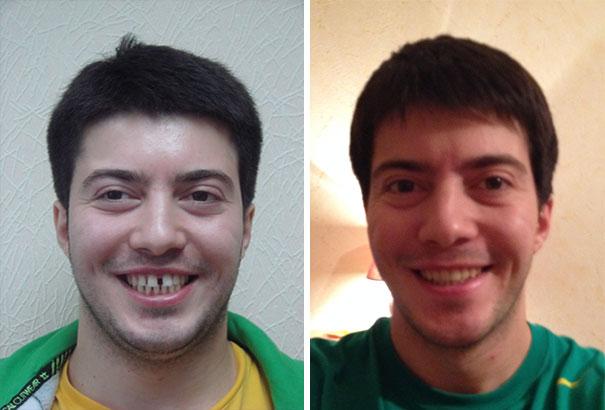 foto antes y después  brackets 14
