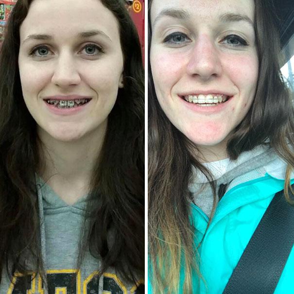 foto antes y después  brackets 15