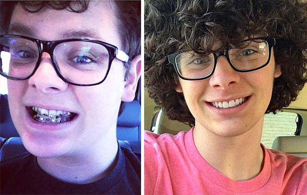 foto antes y después  brackets 18