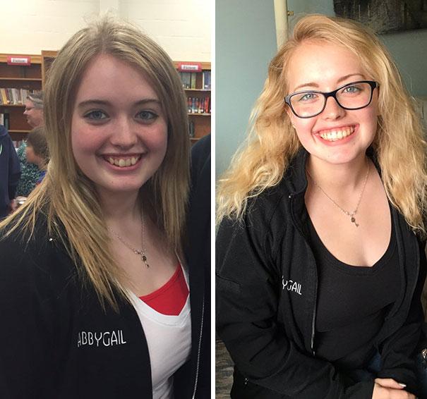 foto antes y después  brackets 2