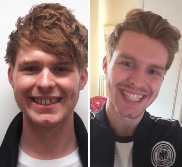 foto antes y después  brackets 20
