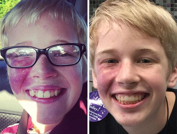 foto antes y después  brackets 21