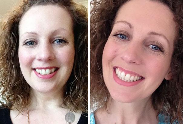 foto antes y después  brackets 22