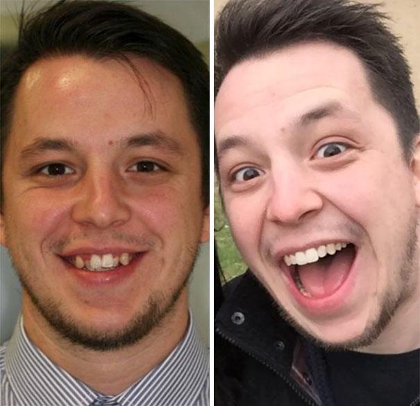 foto antes y después  brackets 23
