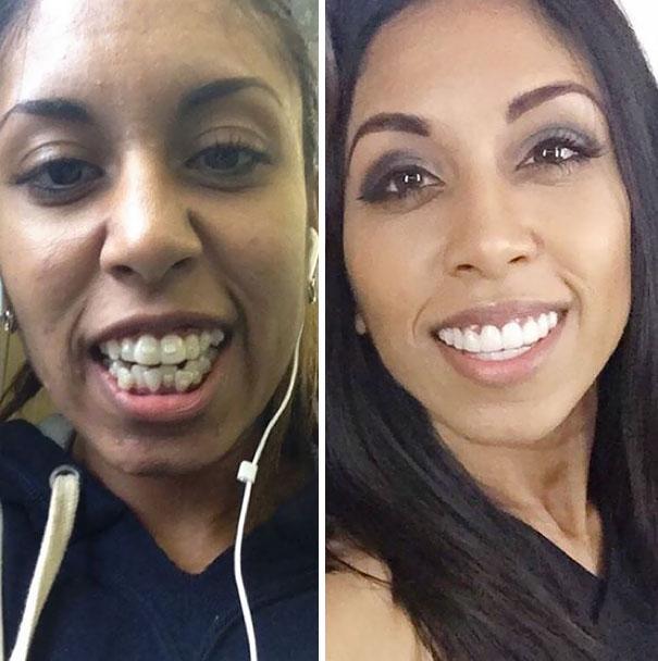 foto antes y después  brackets 24