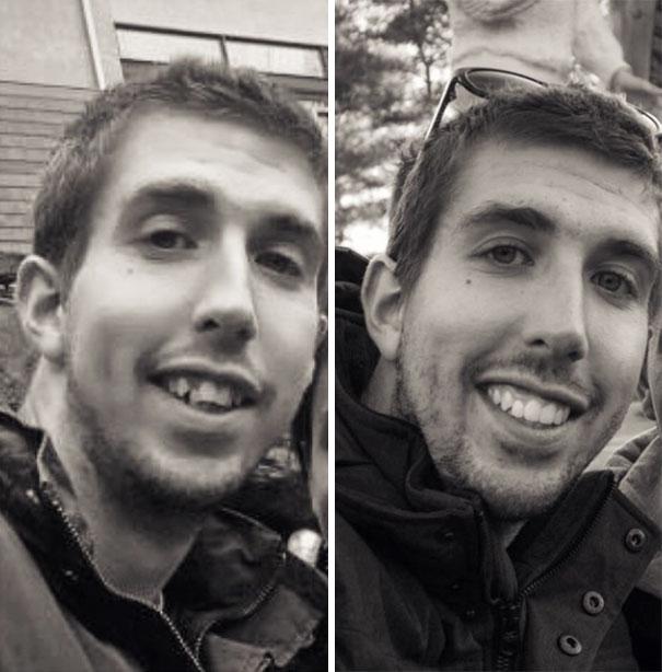foto antes y después  brackets 25