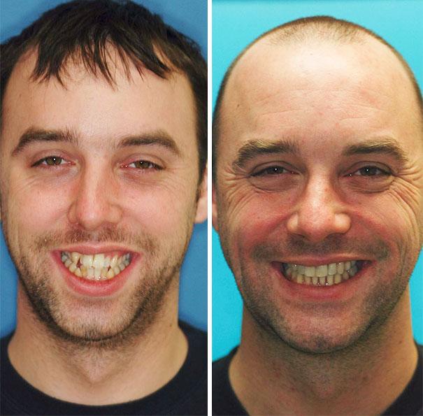 foto antes y después  brackets 27