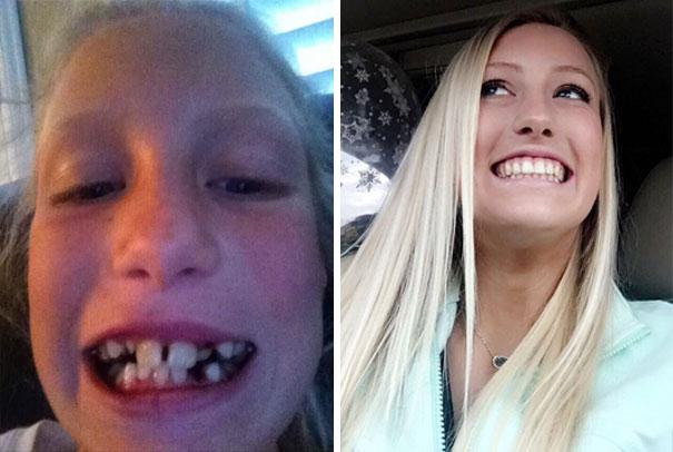 foto antes y después  brackets 3