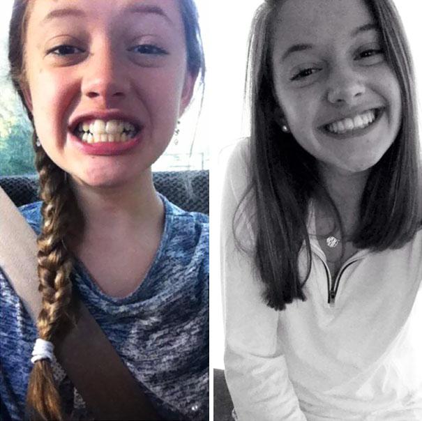 foto antes y después  brackets 29