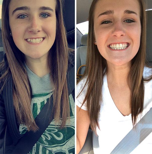 foto antes y después  brackets 30