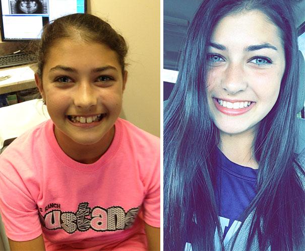 foto antes y después  brackets 32
