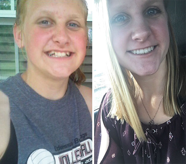 foto antes y después  brackets 34