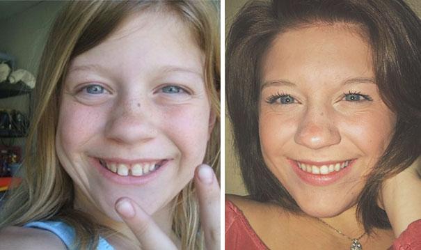 foto antes y después  brackets 35