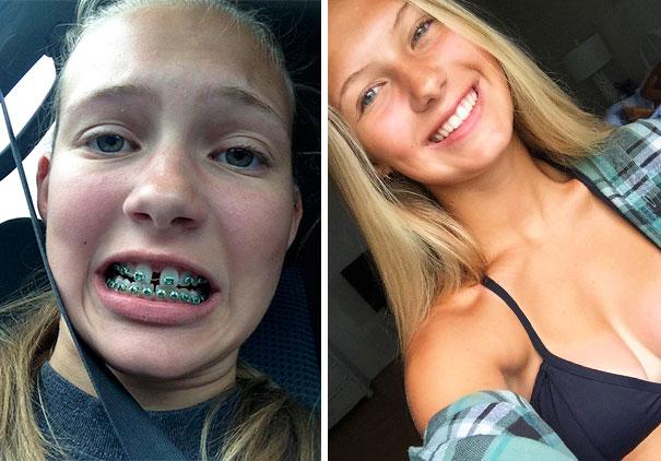 foto antes y después  brackets 36