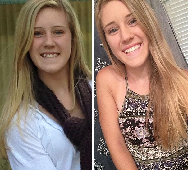foto antes y después  brackets 37