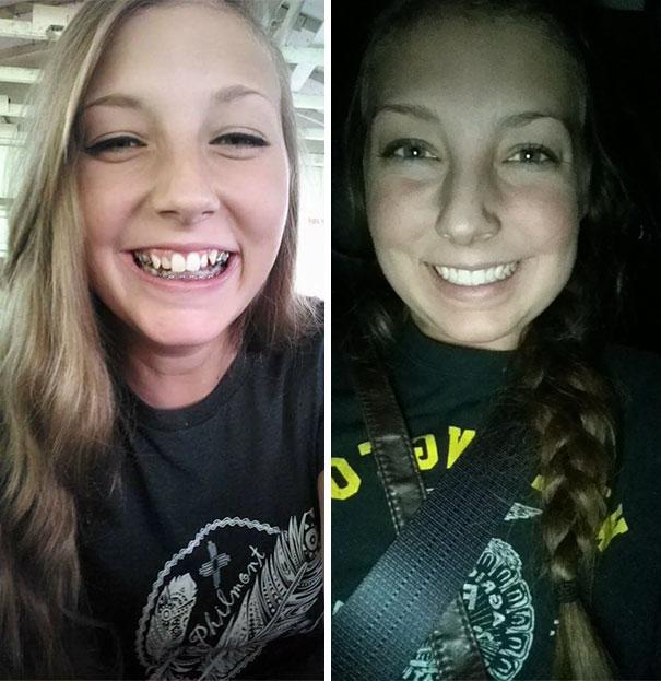 foto antes y después  brackets 38