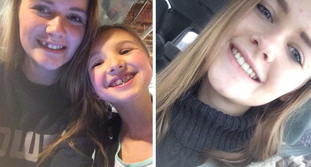 foto antes y después  brackets 4