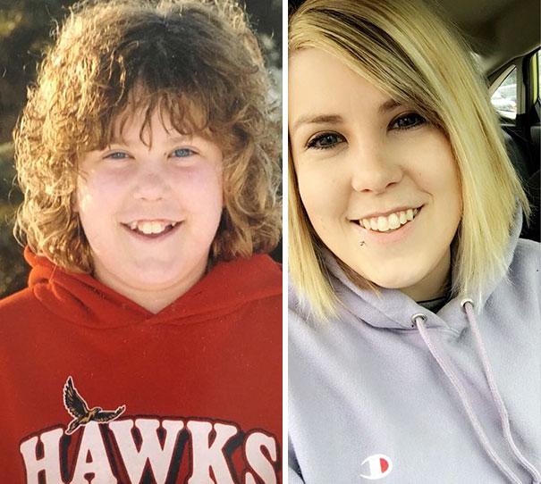 foto antes y después  brackets 40