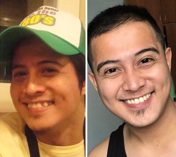 foto antes y después  brackets 41