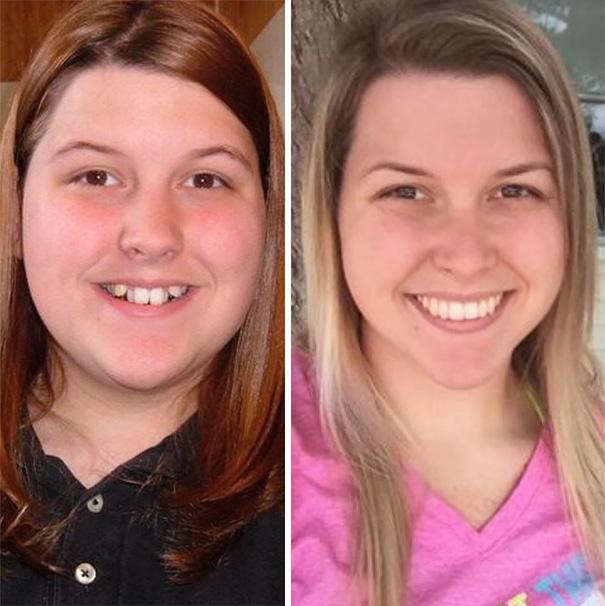 foto antes y después  brackets 42