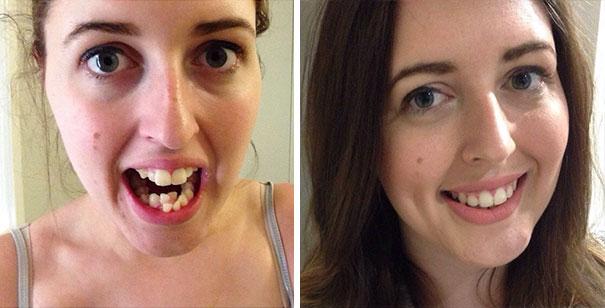 foto antes y después  brackets 43