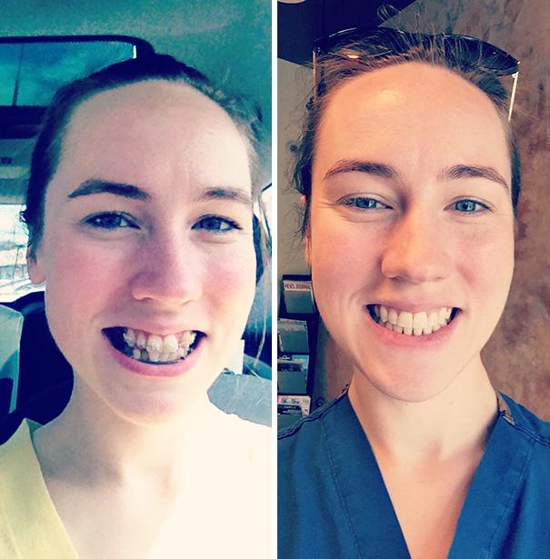 foto antes y después  brackets 44