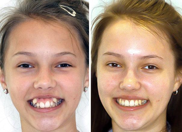 foto antes y después  brackets 45