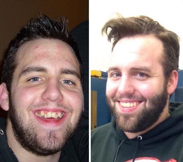 foto antes y después  brackets 5