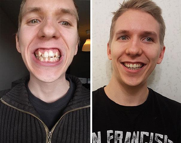 foto antes y después  brackets 6