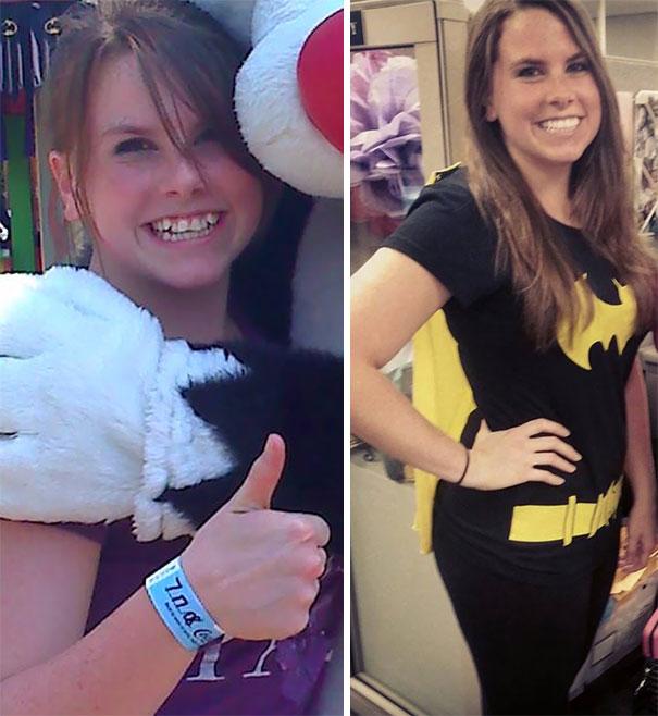 foto antes y después  brackets 7