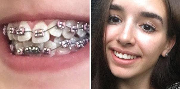 foto antes y después  brackets 8
