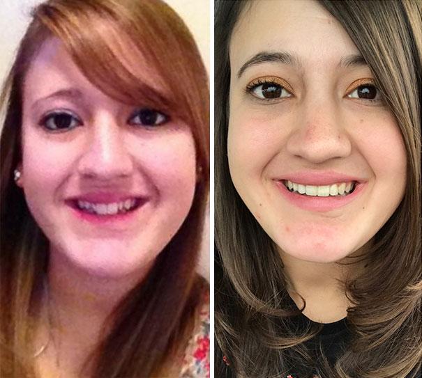 foto antes y después  brackets 9